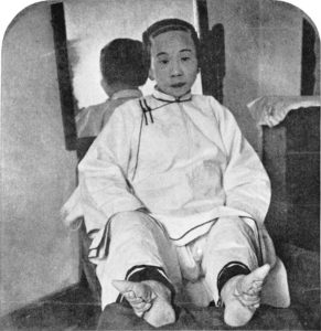 Piedi-fasciati-Cina