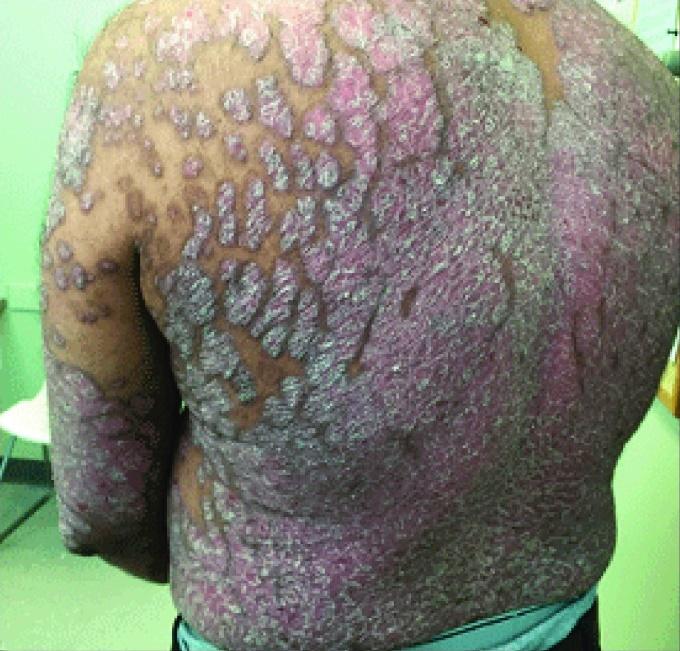 psoriasi eritrodermica - nella foto un dettaglio della schiena psoriasica
