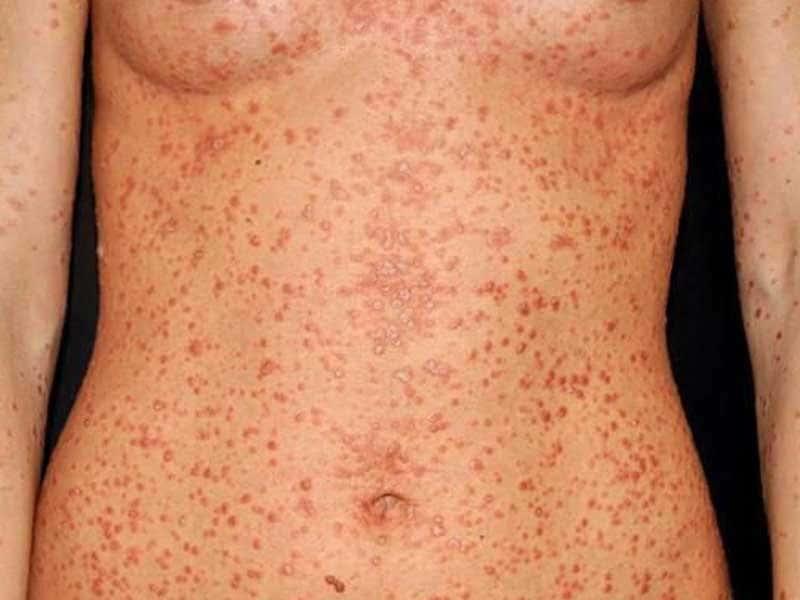 Psoriasi guttata - Le tipiche lesioni a goccia, di colore rosa, si manifestano soprattutto nel tronco.