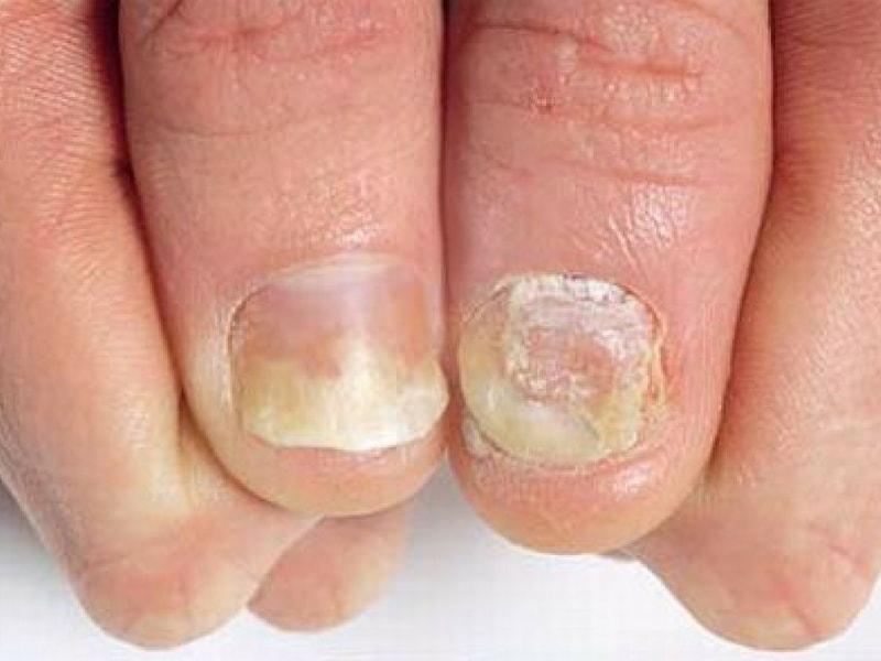 psoriasi alle unghie