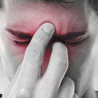 Rinosinusite - ragazzo che soffre di sinusite e si tocca il naso e la fronte
